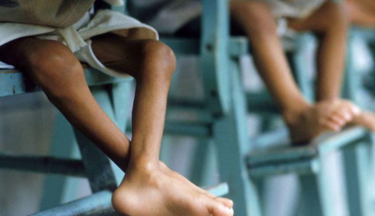 Desnutrición en Colombia durante el 2021 ha dejado más de 100 niños muertos