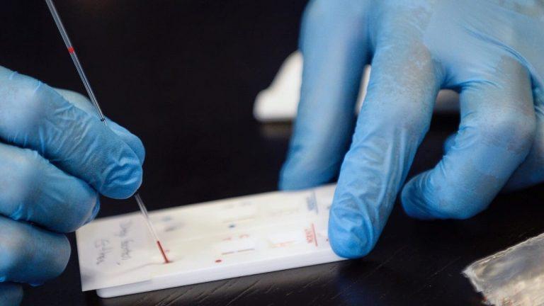Israel autorizó ensayos clínicos en humanos de su vacuna contra el Covid-19